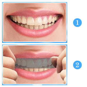 Teeth Whitening Strips,Teeth Bleaching,Teeth Whitening Kit,Teeth Whitening  Strips Advanced Double