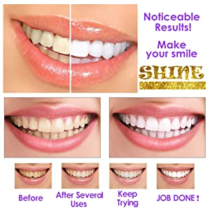 activated teeth whitener charcoal powder