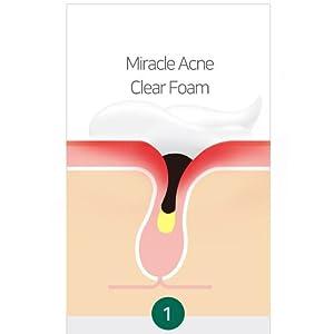 somebymi acne foam