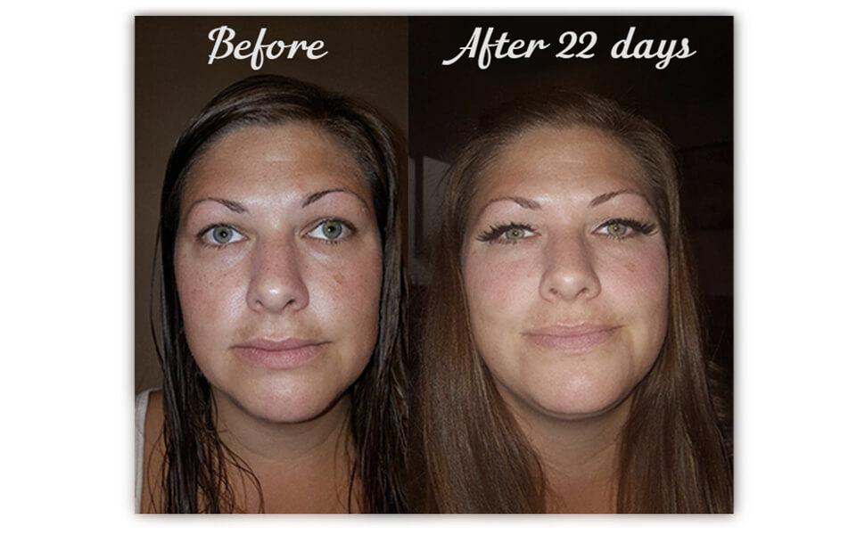 Skin Lightening Cream for Dark Spots - Hydroquinone Cream to Fight Skin  Aging, Fade Sun Damage,