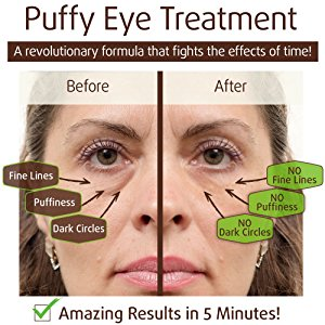 Puffy Eyes Treatment Instant results – Naturally Eliminate Wrinkles,  Puffiness, Dark Circle and Bags in