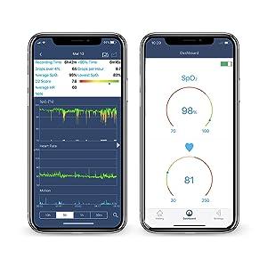 SleepU blood oxygen saturation monitor 4