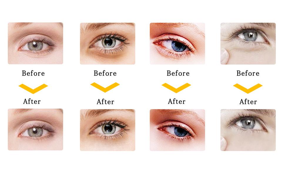 under eye patches under eye bags treatment eye mask for puffy eyes under eye mask for dark circles