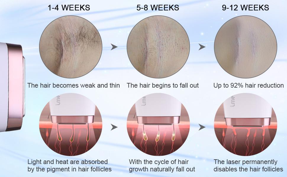 IMENE laser hair removal