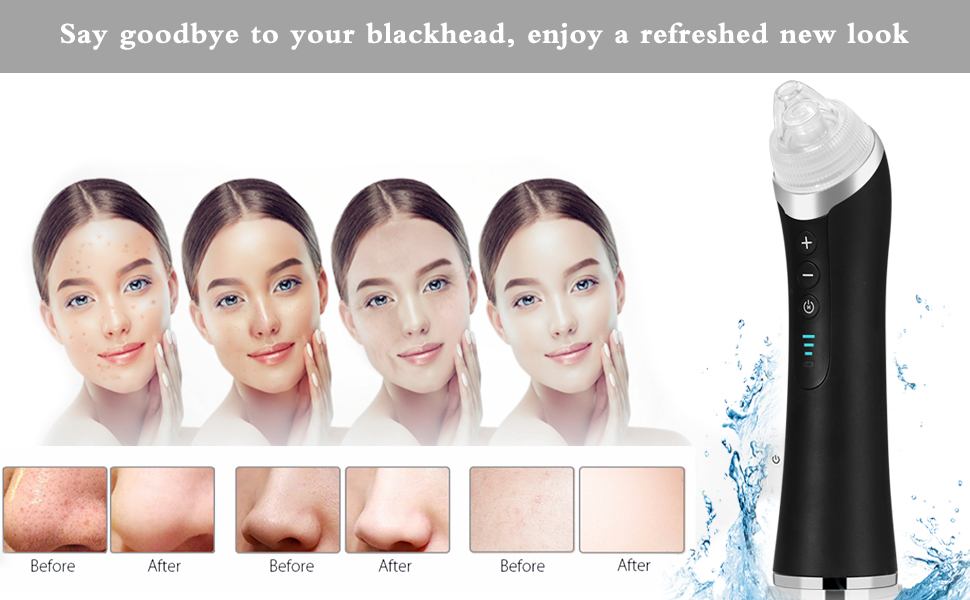 Say goodbye to y our blackhead, enjoy a refreshed new look