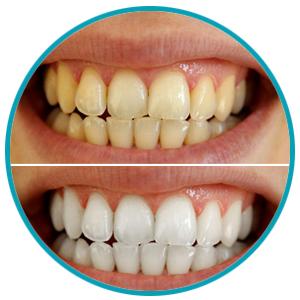 Amazon Com Ms Dear Teeth Whitening Charcoal Powder