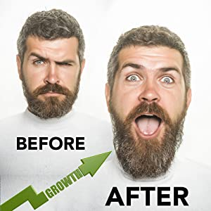 prophet and tools beard gang growth best grow vitamin e aloe vera facial hair thin dry before after