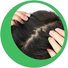 Demodex Shampoo for Treatment of Scalp Demodicosis, 6 Ounce