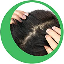Works on the Scalp Effectively
