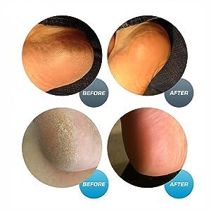 pedicure foot file callus shaver pedi pumice stone best callus remover foot care hard skin remover