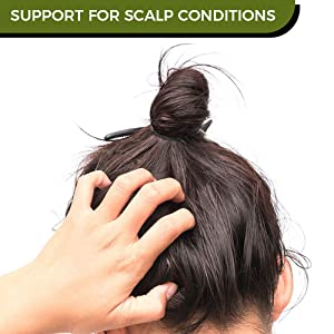 Support for scalp conditions