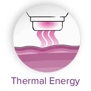 L'énérgie thermique