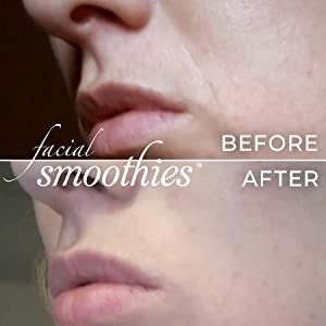 Facial Smoothies Wrinkle Remover Strips - rapid anti-wrinkle treatment -  150