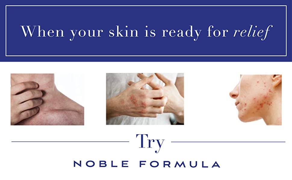 When your skin is ready for relief, try Noble Formula
