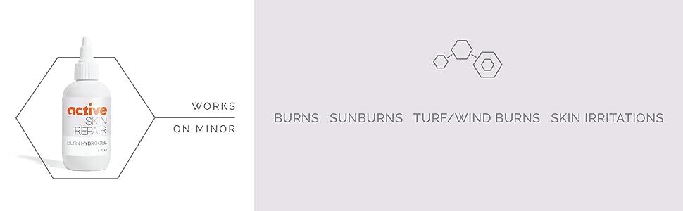works on minor burns, sunburns, turf burns, wind burns and skin irritations