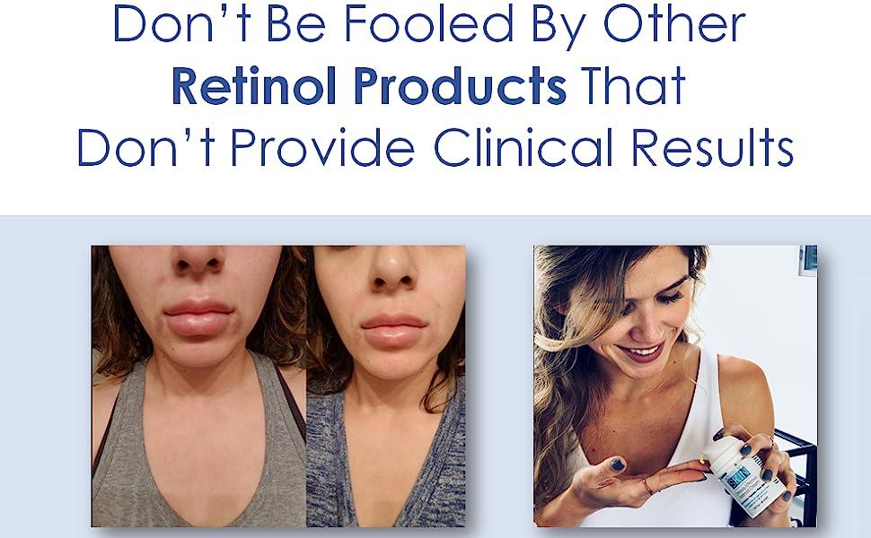 skincare, retinol