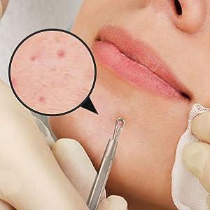 Amazon com: Blackhead Remover Pimple Comedone Extractor Tool - Acne