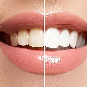 Professional Dental Tartar Scraper Tool - Dental Pick, Double Ended Tartar  Remover for Teeth, Plaque