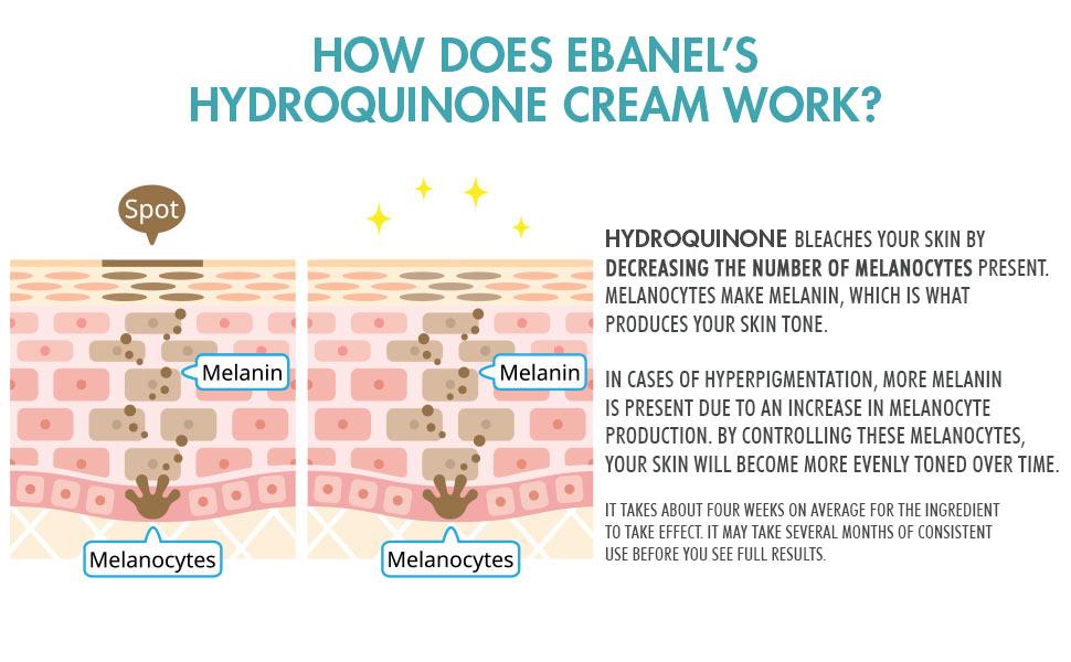 hydroquinone cream