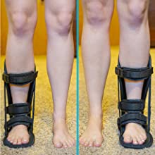 you can wear our achilles tendon boot on the right or left boot