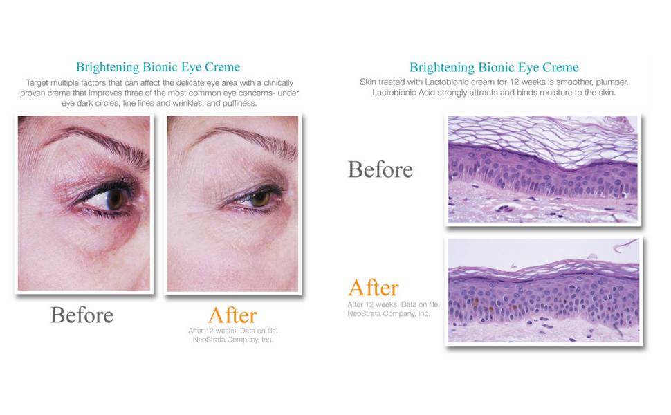exuviance eye cream reviews