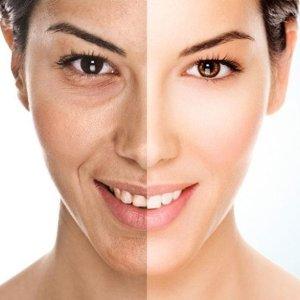 Get Clearer, Healthier Skin. Microdermabrasion ...