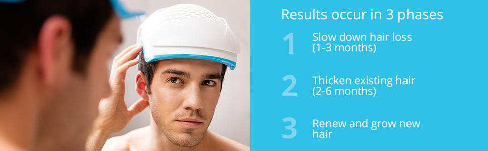 Theradome laser hair loss helmet