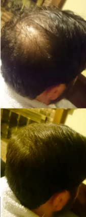 As long as youre not bald and maintain some level of thinning hair then this product will work for you! Dont be fooled by other hair fiber companies that ...
