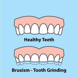 healthy teeth, bruxism, teeth grinding, grinding
