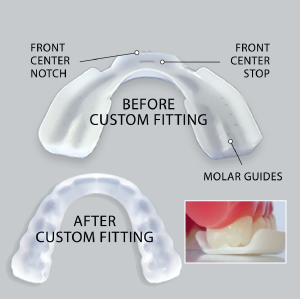 sleep right, dental guard, pro rx, rx, dental, guard, perfect fit