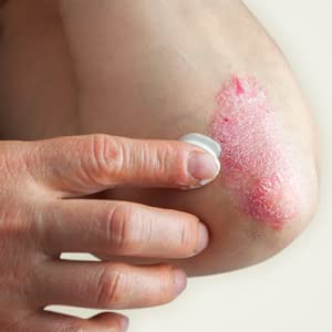 Applying Cream to Psoriasis