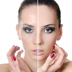 women acne hormone support dim vimerson health