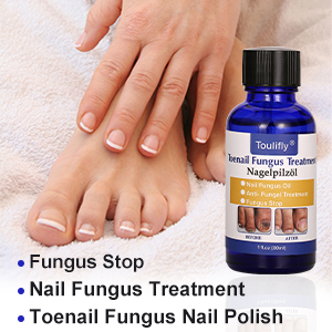 Amazon.com : Fungus Stop, Nail Fungus Treatment, Toenail Fungus Nail ...