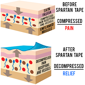 Amazon spartan tape kinesiology tape perfect support for the vision behind the kinesiology taping system was to design a tape and taping style which would effectively provide support to muscles and reduce pain fandeluxe Images