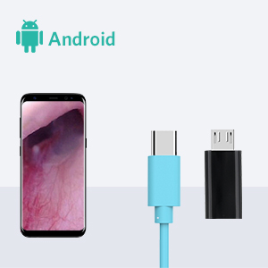 Android otoscope
