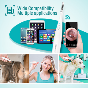 wireless otoscope