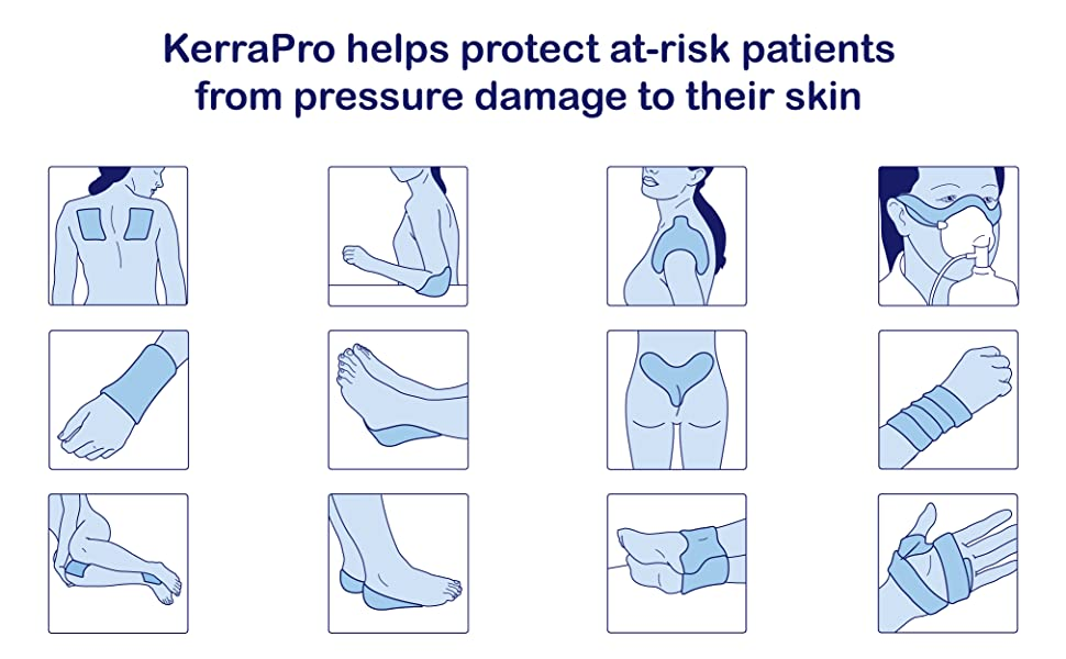 Kerra Pro Pressure reducing pads application and use