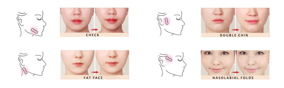 V Shape Face label Lift up fast works