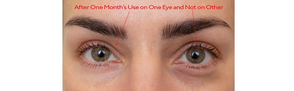 Under Eye Serum Comparison