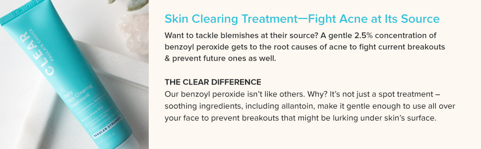 This acne treatment contains benzoyl peroxide that prevents breakouts and stops current breakouts.