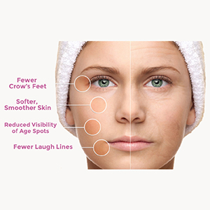 Image of before and after face anti wrinkle cream