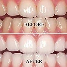 vs1 teeth whitening pen gel kit
