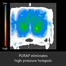 PURAP cushion eliminates pressure hotspots