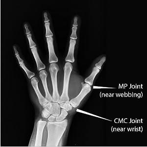 Thumb Joints