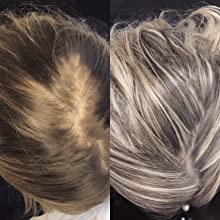 scalp before-after