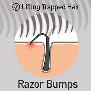Dylonic Exfoliating Brush Razor Bumps remover
