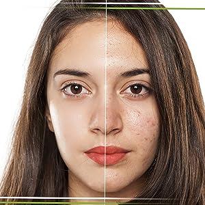 dim suplement hormonal support hormonal estrogen testosteron balance menopause acne treatment