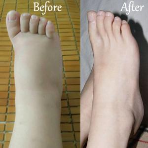 Compression Socks for Nursing,Medical