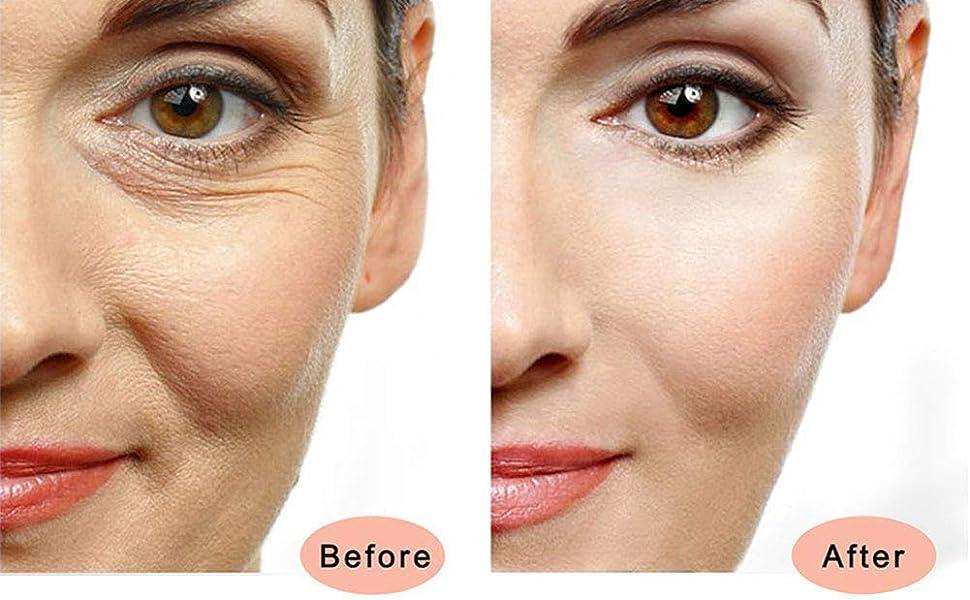 Beauty Bar 24k Golden Pulse Facial Massager, T-Shape Electric Sign Face  Massage Tools for