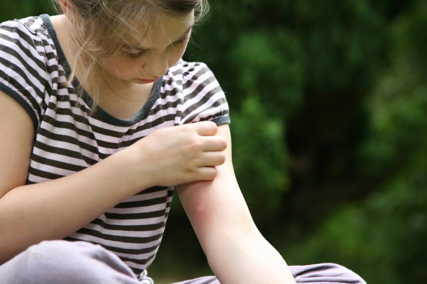 Girl scratching a mosquito bite.